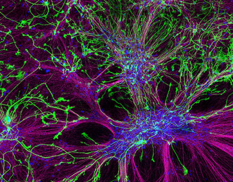 Human iPS-derived cerebral cortex neurons (146 days) infected by GFP-expressing lentivirus, Courtesy of Roberta Cagnetta