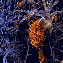 Alzheimer's disease: neurons with amyloid plaques